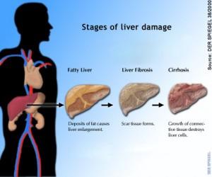 liver-condition1